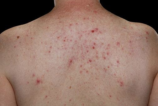 acne- side effects caused by dianabol
