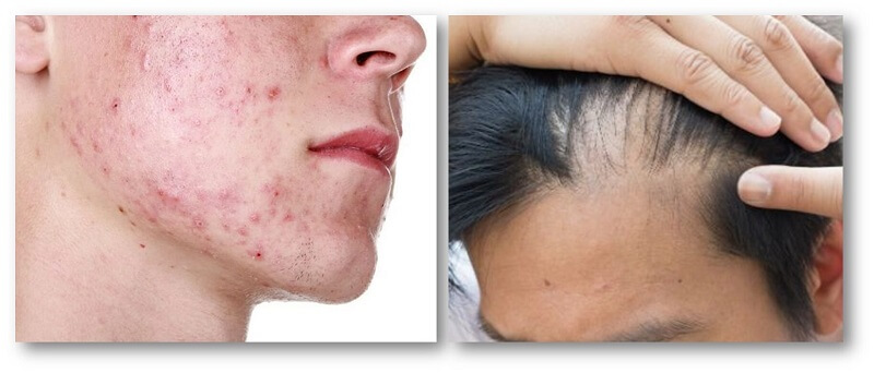 acne, pimples and baldness in men