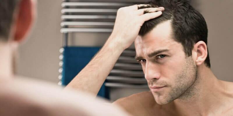 hair loss or baldness in men