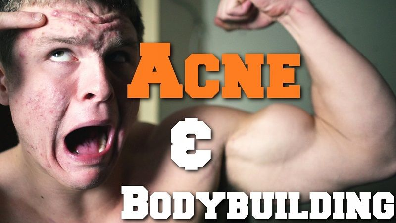 painful and dangerous acne