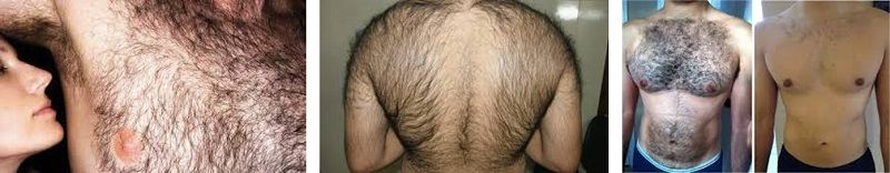 excess hair growth