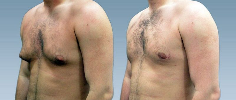 men breast enlargement