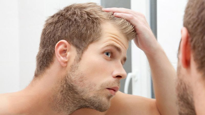 Low Testosterone Can Cause Hair Loss Or Balding