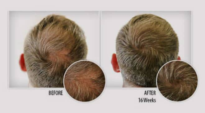 Provillus Hair Regrowth Result